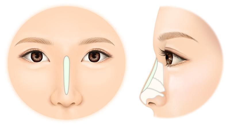 鼻を高くする方法